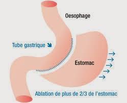 La sleeve gastrectomie consiste à retirer une grande partie de l'estomac, pour former un tube qui ralentit le passage des aliments.