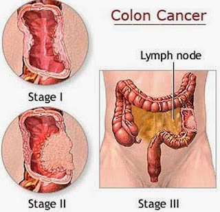 Some Answers To Colon Cancer Questions