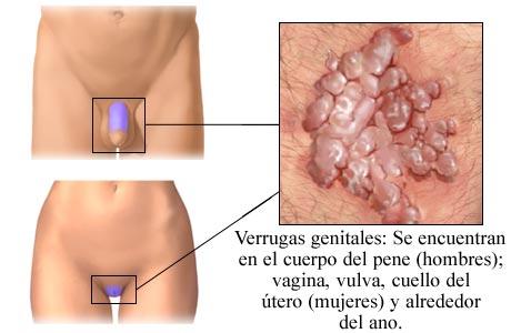 enfermedades venereas prostitutas prostituas