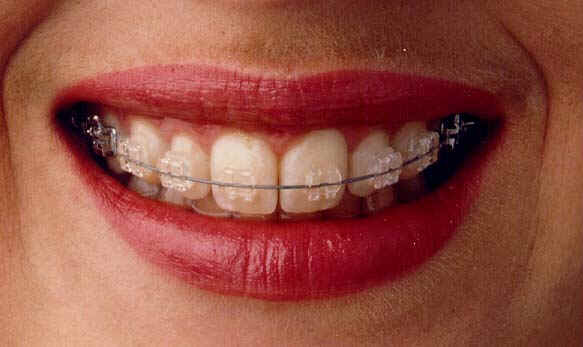 Pin Clear-braces-for-adults-cost on Pinterest