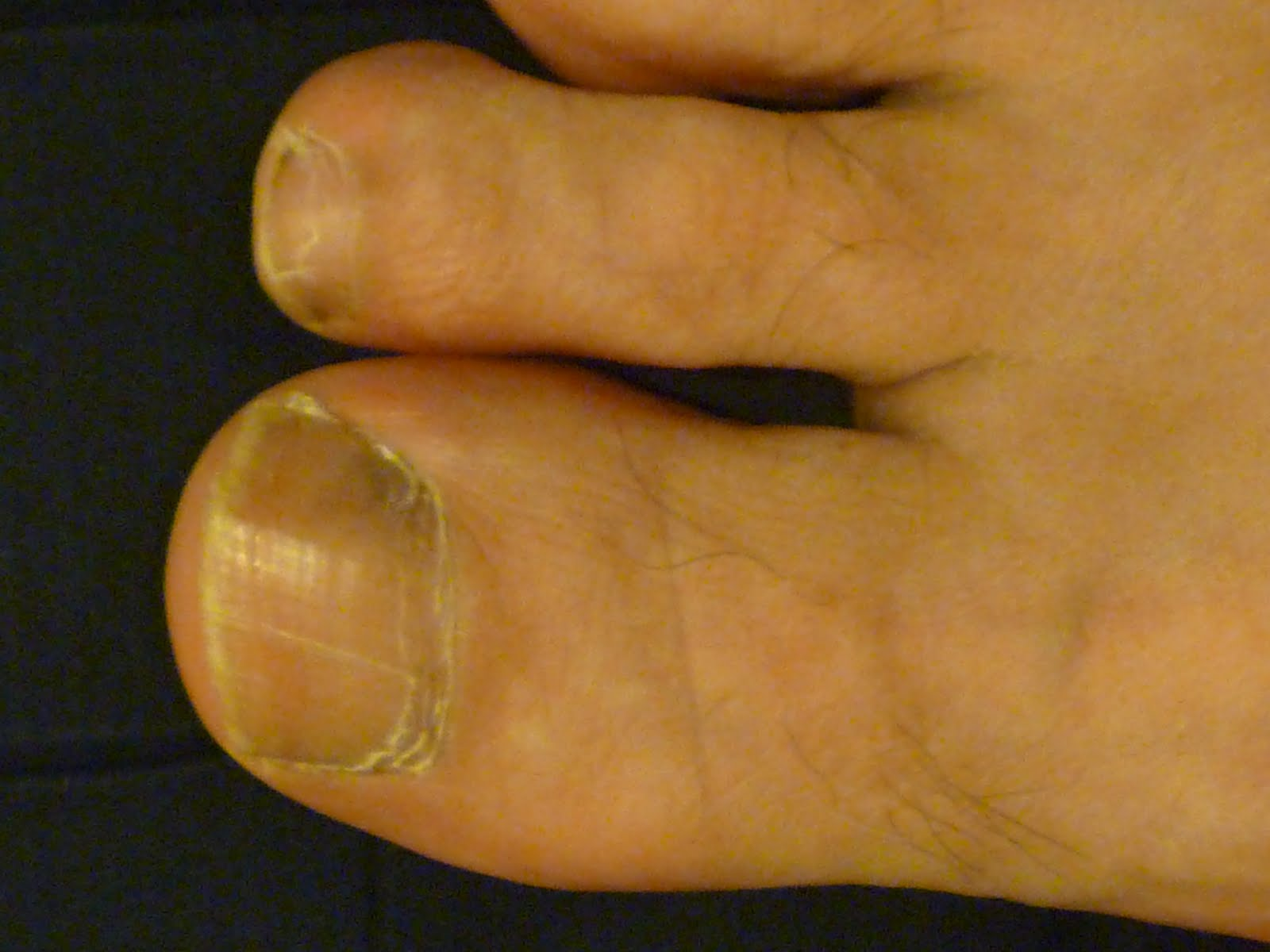 Toenail Usually Curve Down