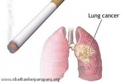 Rokok Salah-satu Penyebab Kanker Paru
