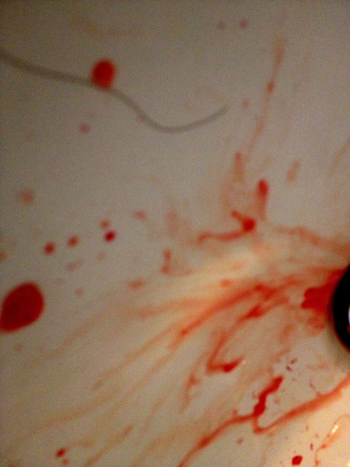 blod från näsan