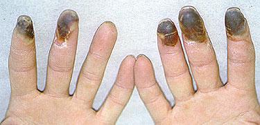 nursing diagnosis for acute pancreatitis