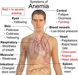 obat herbal anemia