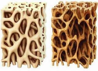 Fiori di Bach rimedi all'osteoporosi ossa fragili