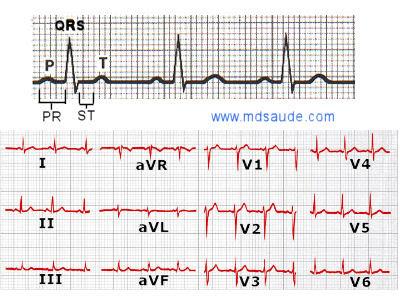 Trazado del ECG