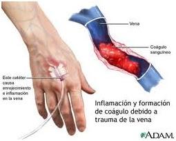 La trombosis aguda de las venas inferior