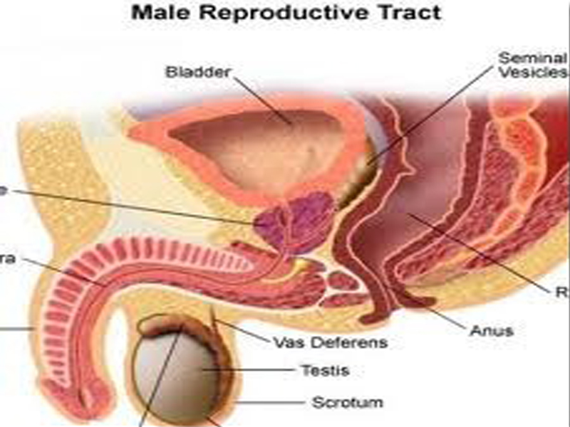 Cara Menyembuhkan Penyakit Prostat