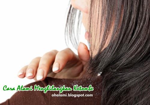 Cara Menghilangkan Ketombe Pada Rambut