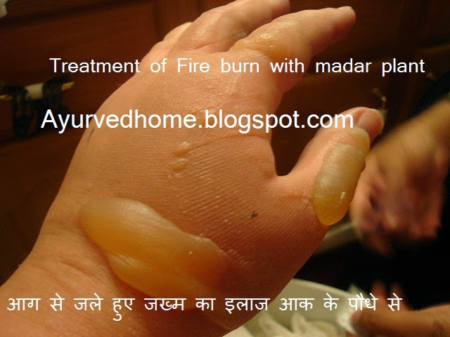 आग से जले हुए जख्म का इलाज