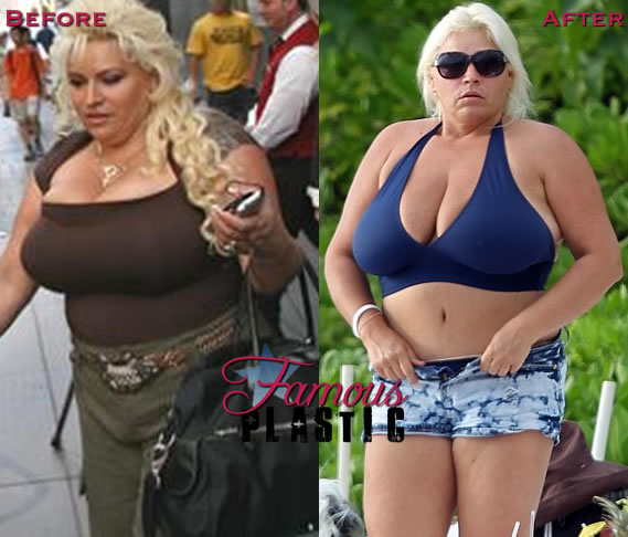 Beth Chapman Plastic Surgery Before And After Tummy Tuck