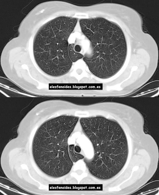 El esfenoides: Cisura y lóbulo accesorio de la ácigos. 2 imágenes 1 ...