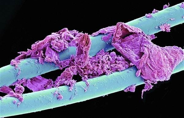 flos-gigi-mikroskop