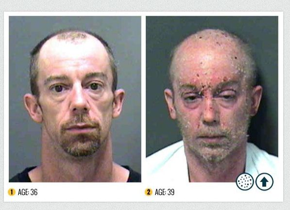 Today' s Gist: The horror of Meth: Before-and-after ...