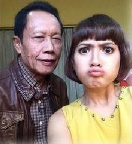 Pala botak Jokowi