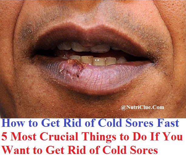 cold sores fever blisters wikipedia