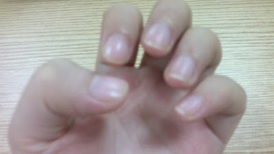 My Unpolished Nails