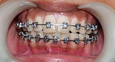 Damon Braces Treatment