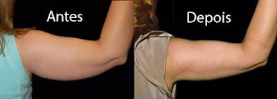 Fotos de criolipólise no braço - Antes e Depois