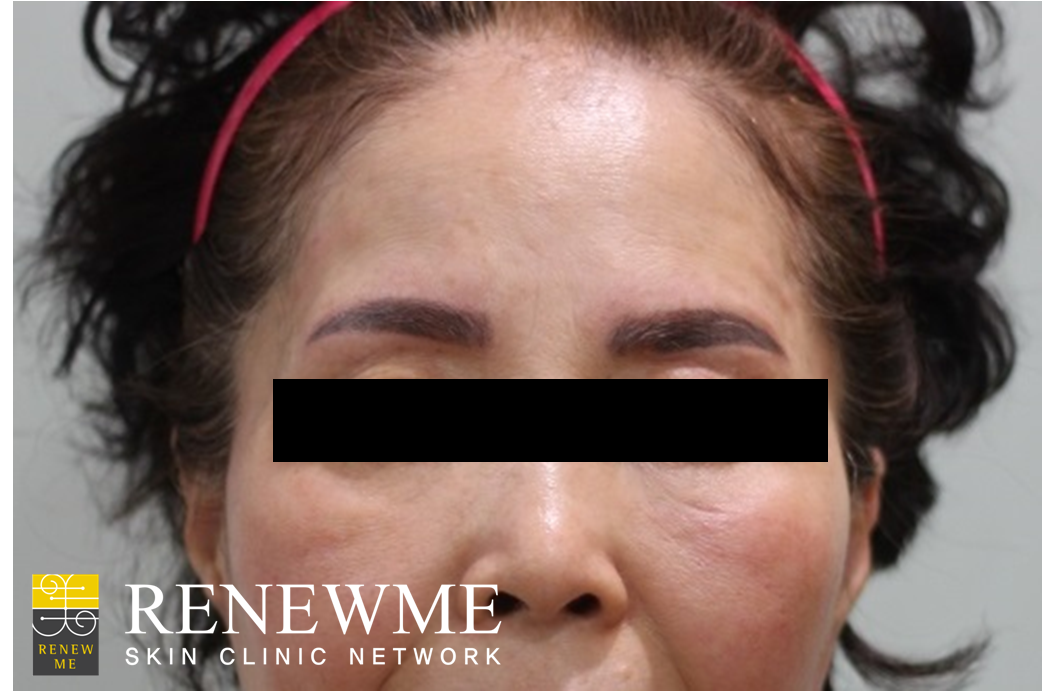 Renewme skin clinic eyebrow tattoo removal at renewme for Eyebrows tattoo removal laser