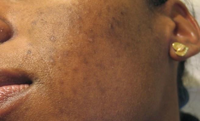 De la pigmentation sur la personne chez les enfants
