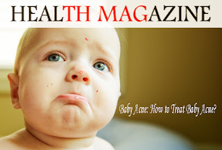 Baby Acne: How to Treat Baby Acne?