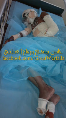 Child wounded in shelling in Bani Walid early today