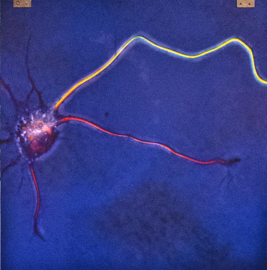 Sistema nervioso estable, foto de Frank Bradke y Harald Witte, del Instituto Max Planck de Neurobiología, Martinsried, Alemania.