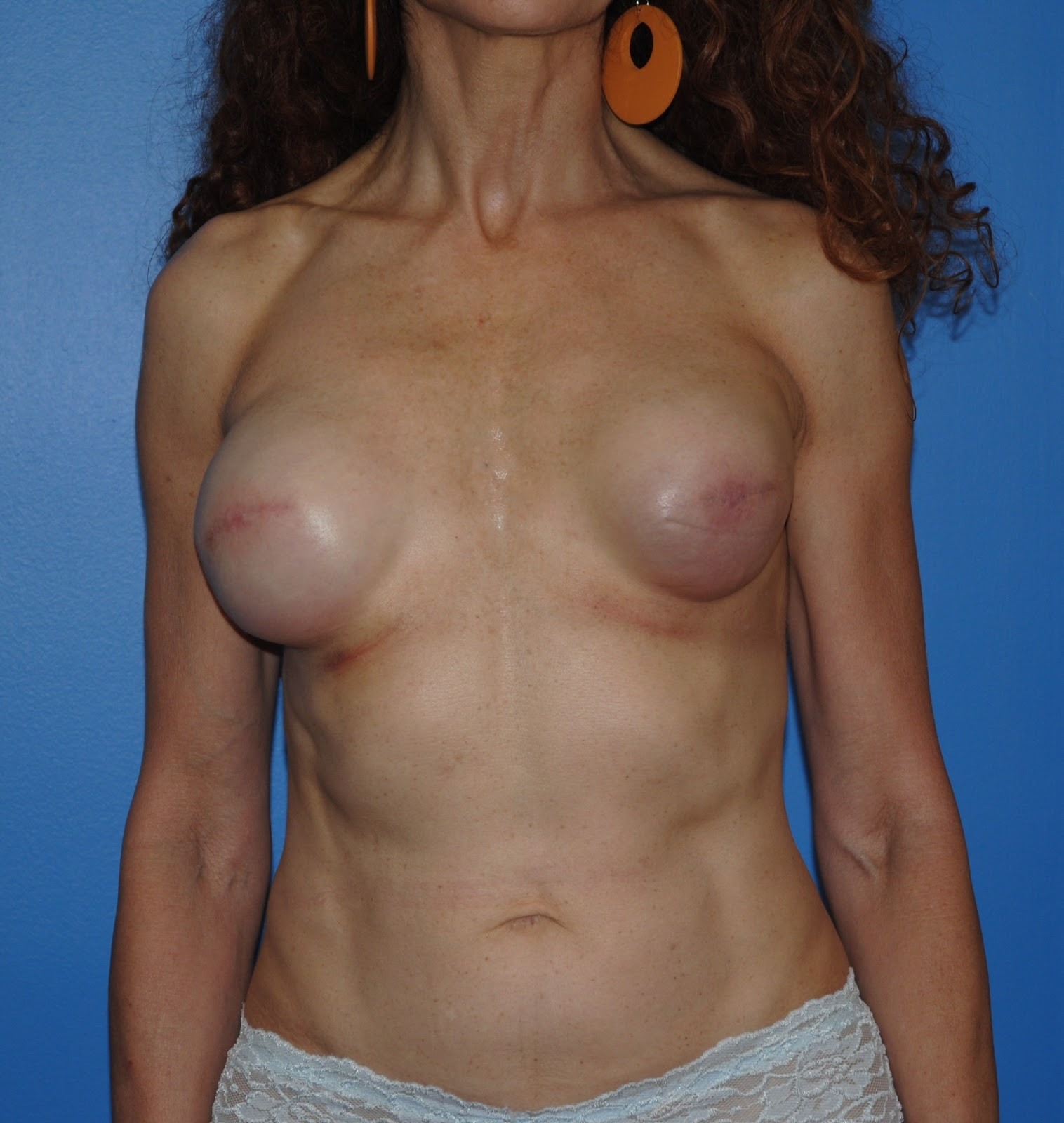 breast implant after radiation