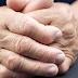 Artrite reumatoide e a Fisioterapia