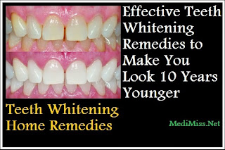 Teeth Whitening Home Remedies - Effective Teeth Whitening Remedies to Make You Look 10 Years Younger