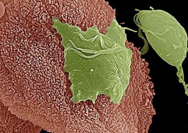 Parasita que causa DST pode estar ligado a cancer de prostata Sexualidade, doencas sexualmente transmissiveis e prevencao
