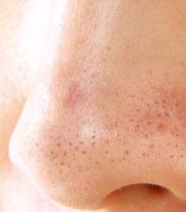 komedo merupakan salah satu dilema yang sangat besar bagi mereka yang mempunyai wajah yan mengatasi komedo di wajah secara alami