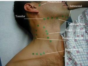 Cara Menyembuhkan Tumor Ganas Di Leher