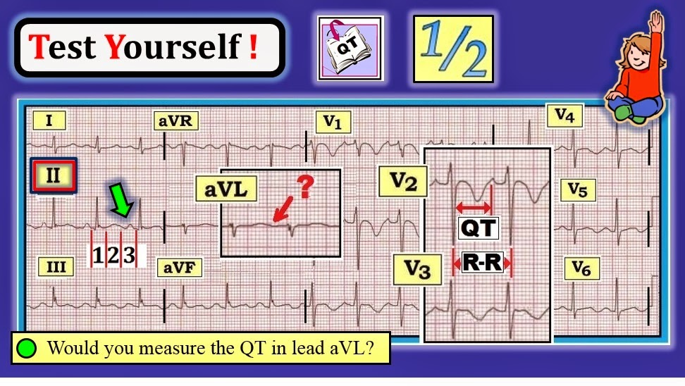 ekg interpretation case studies