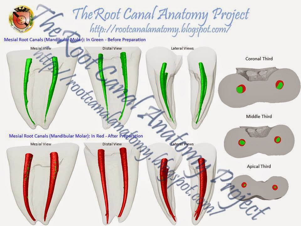 The Root Canal Anatomy Project Root Canal Anatomy X Rotary Preparation