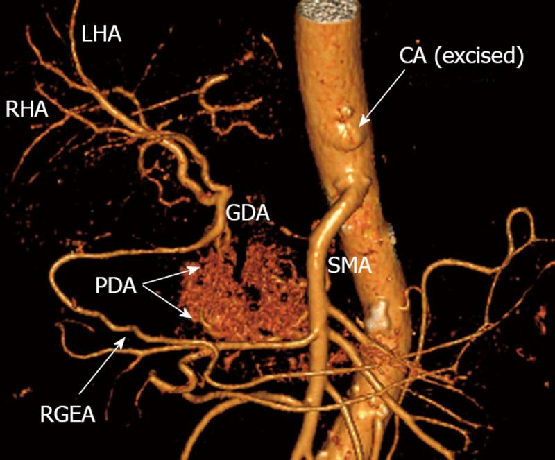 Celiac Artery And Its Branches 3d Ct Anatomy Radiology Anatomy Images