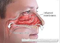 Cara Mudah Menyembuhkan Hidung Mampet
