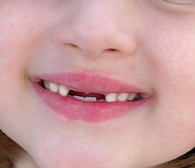 Fammi crescere i Denti Davanti