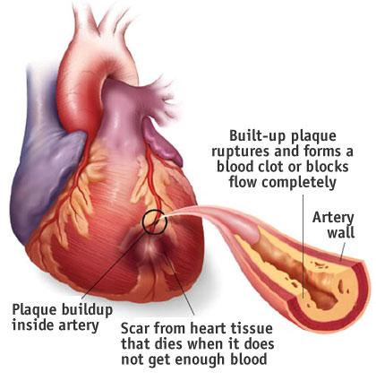 jantung koroner, masalah
