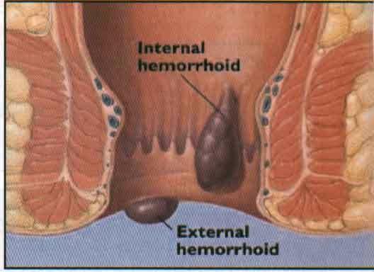 obat tradisional untuk penyakit wasir atau ambeien, jual obat ambeien atau wasir, obat alami untuk menyembuhkan penyakit wasir, obat ambeien wasir untuk ibu hamil