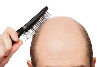 Prevent hair loss with these helpful tips