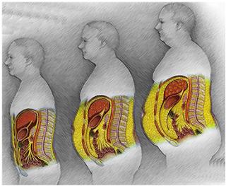 MyBodyMyLife: Deep Belly Fat
