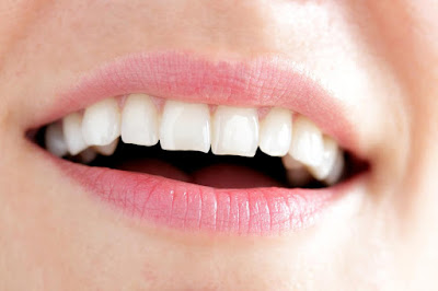 How to Whiten Teeth With Hydrogen Peroxide