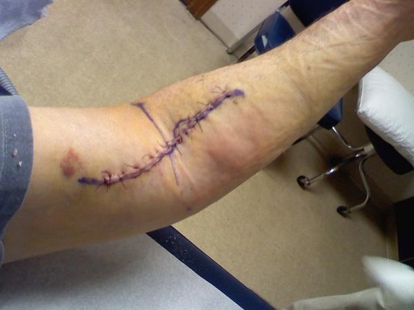 distal bicep repair