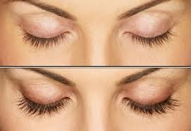<eyelash-transplant>