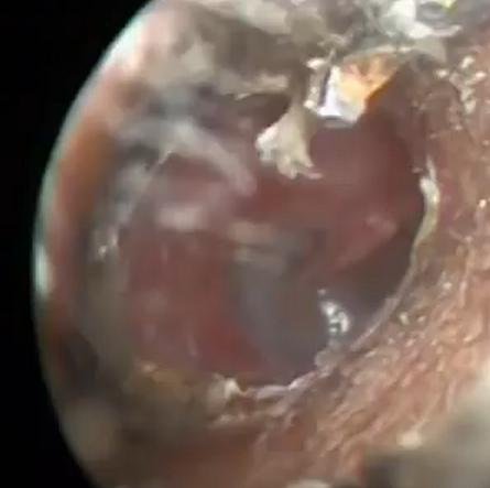 耳垢が多い2つの原因!病気の可能性はあるの?