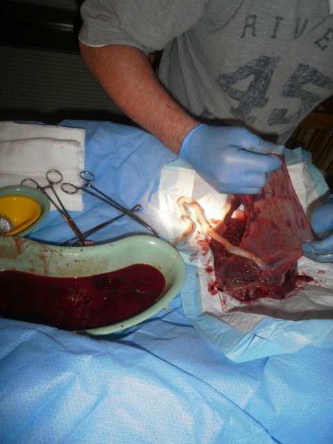 Unique Placentas- Battledore Placenta, Twin Placenta, and ...   480 x 640 jpeg 91kB