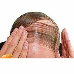 mengatasi kerontokan rambut